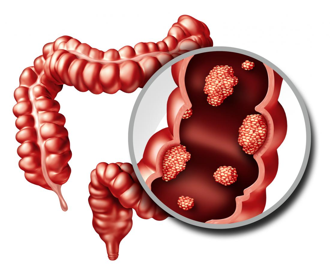 Colorectal Cancer- the silent killer with no early warning